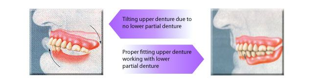 denture diagram